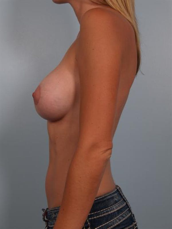 Breast Augmentation Gallery - Patient 1310606 - Image 4