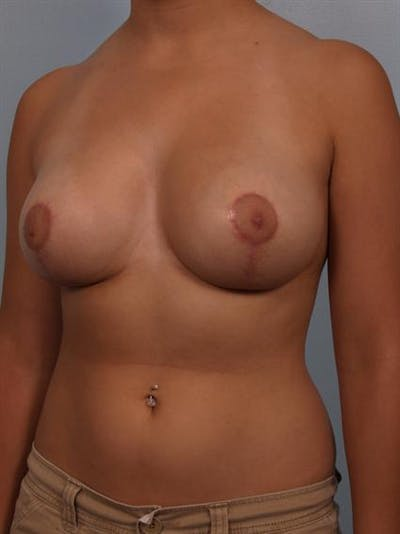Breast Reduction Gallery - Patient 1310601 - Image 6