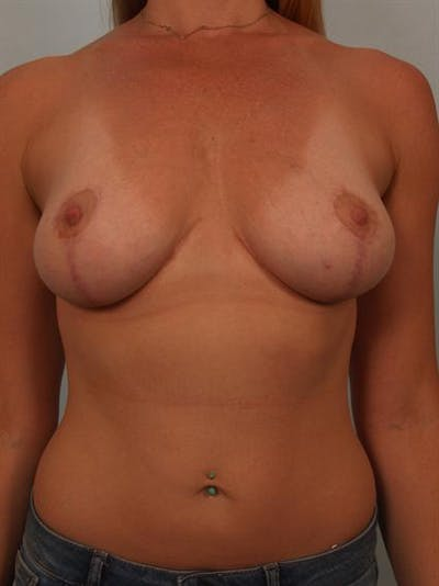 Fat Grafting Gallery - Patient 1310607 - Image 2
