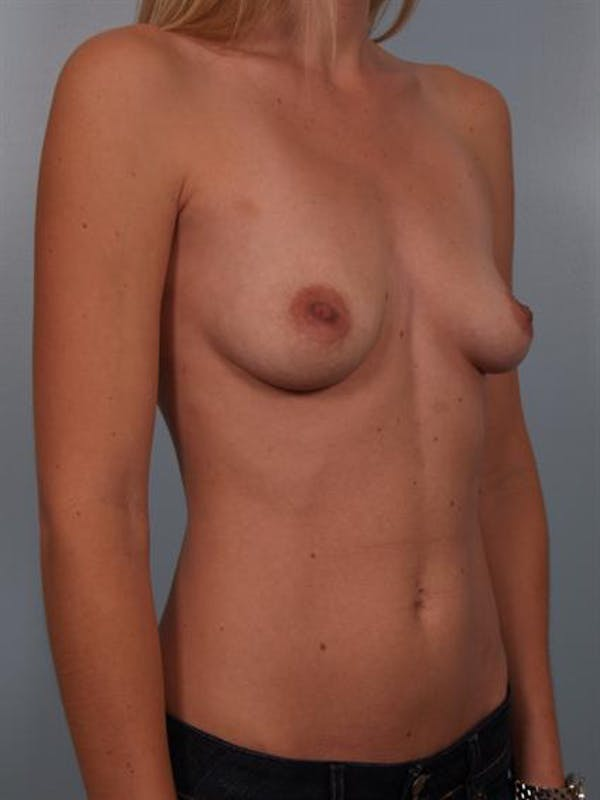 Breast Augmentation Gallery - Patient 1310606 - Image 5