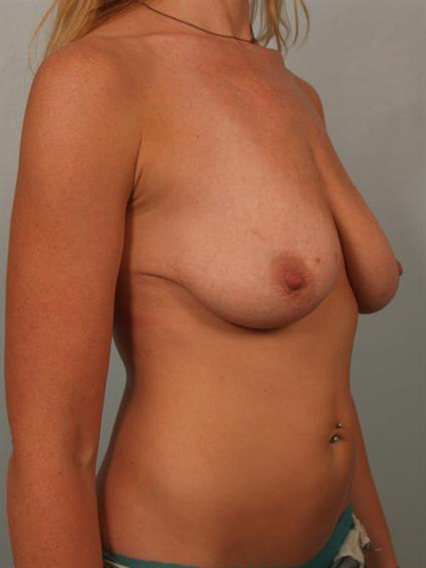 Fat Grafting Gallery - Patient 1310607 - Image 3