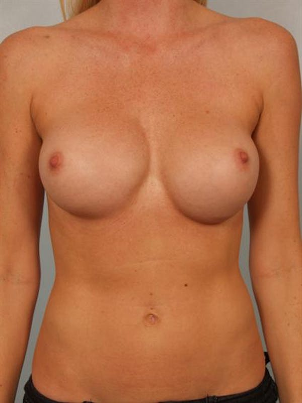 Complex Breast Revision Gallery - Patient 1310611 - Image 1