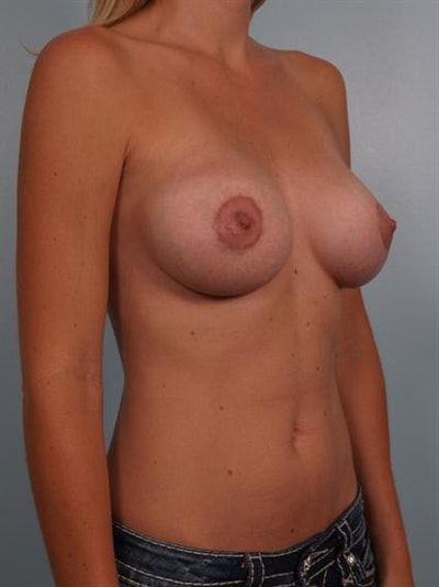 Breast Augmentation Gallery - Patient 1310606 - Image 6