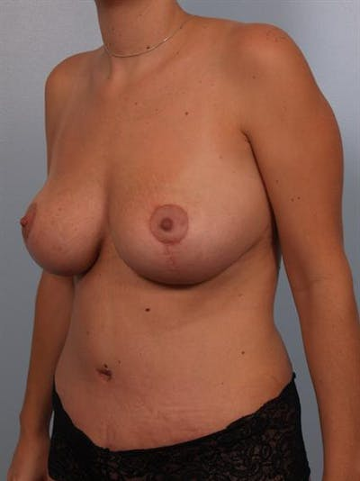 Mommy Makeover Gallery - Patient 1310605 - Image 6