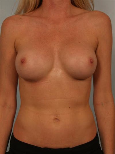 Complex Breast Revision Gallery - Patient 1310611 - Image 2