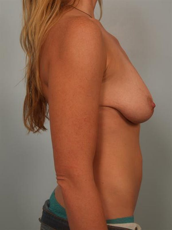 Fat Grafting Gallery - Patient 1310607 - Image 5