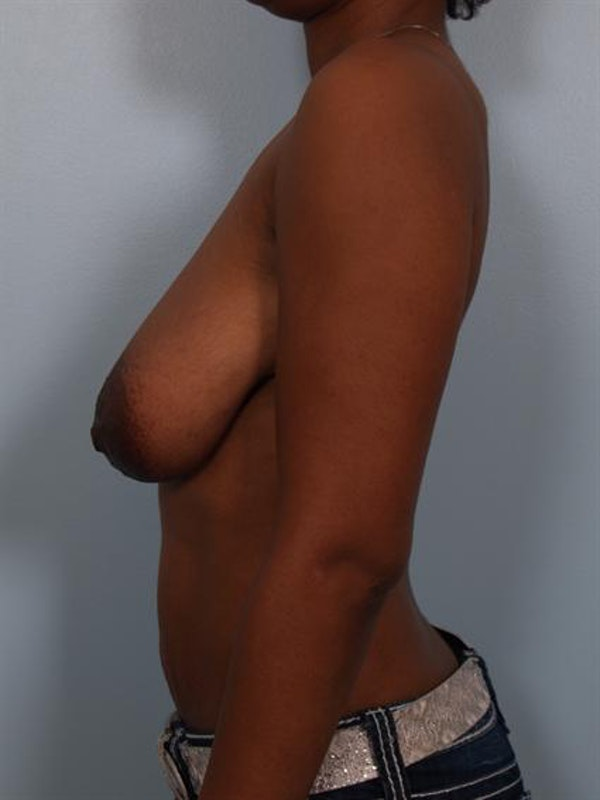Breast Reduction Gallery - Patient 1310608 - Image 3