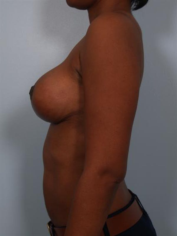 Breast Reduction Gallery - Patient 1310608 - Image 4