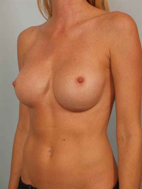 Complex Breast Revision Gallery - Patient 1310611 - Image 3