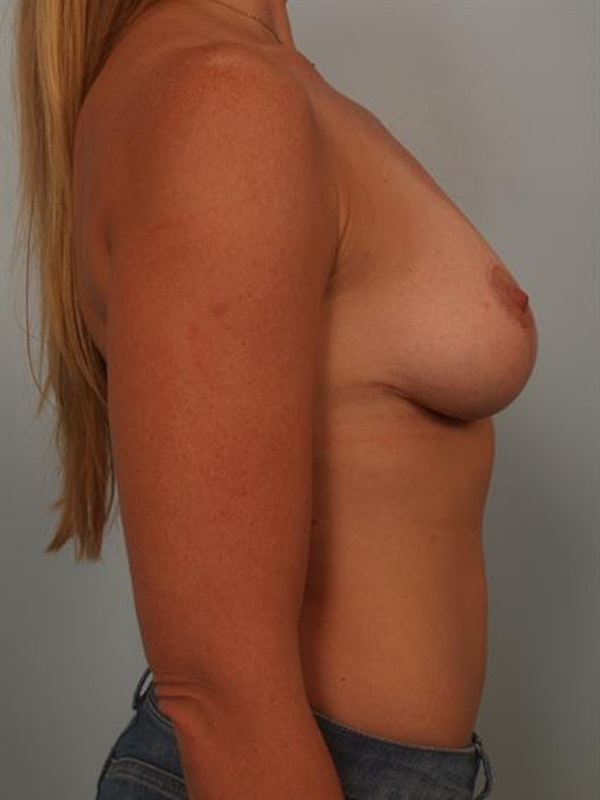 Fat Grafting Gallery - Patient 1310607 - Image 6