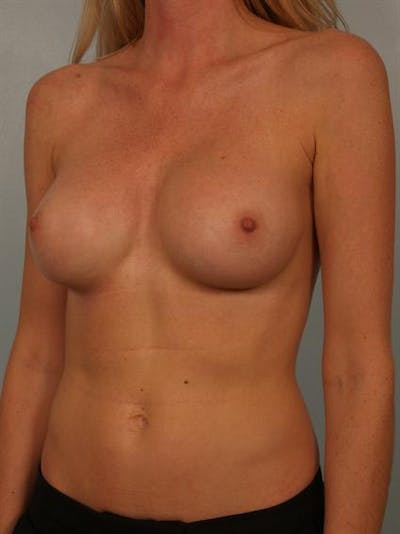 Complex Breast Revision Gallery - Patient 1310611 - Image 4