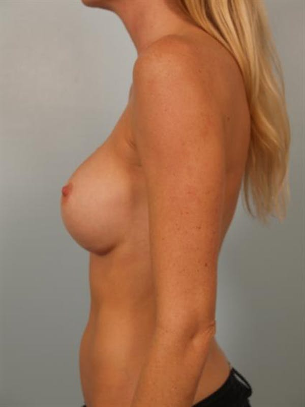 Complex Breast Revision Gallery - Patient 1310611 - Image 5