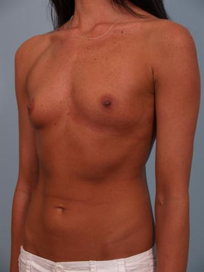 Breast Augmentation Gallery - Patient 1310617 - Image 1