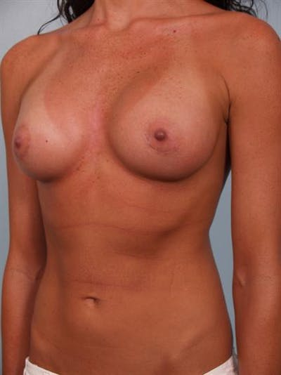 Breast Augmentation Gallery - Patient 1310617 - Image 2