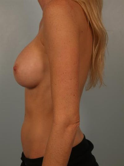 Complex Breast Revision Gallery - Patient 1310611 - Image 6