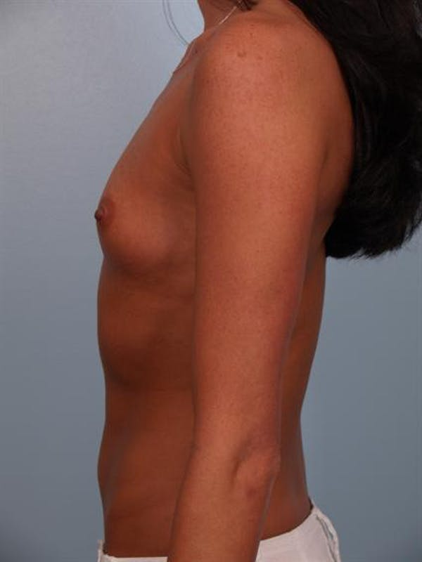 Breast Augmentation Gallery - Patient 1310617 - Image 3
