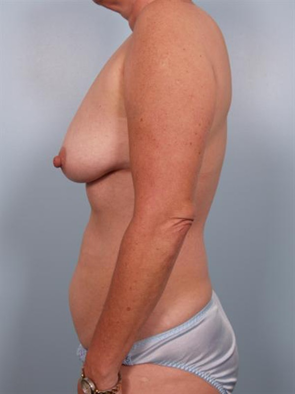 Breast Lift Gallery - Patient 1310616 - Image 3
