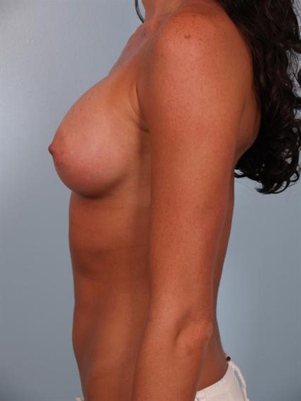 Breast Augmentation Gallery - Patient 1310617 - Image 4