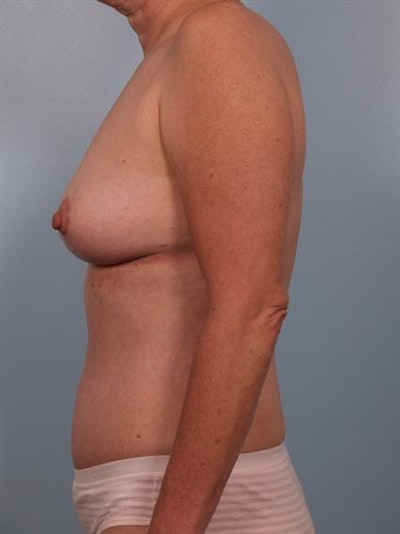 Breast Lift Gallery - Patient 1310616 - Image 4