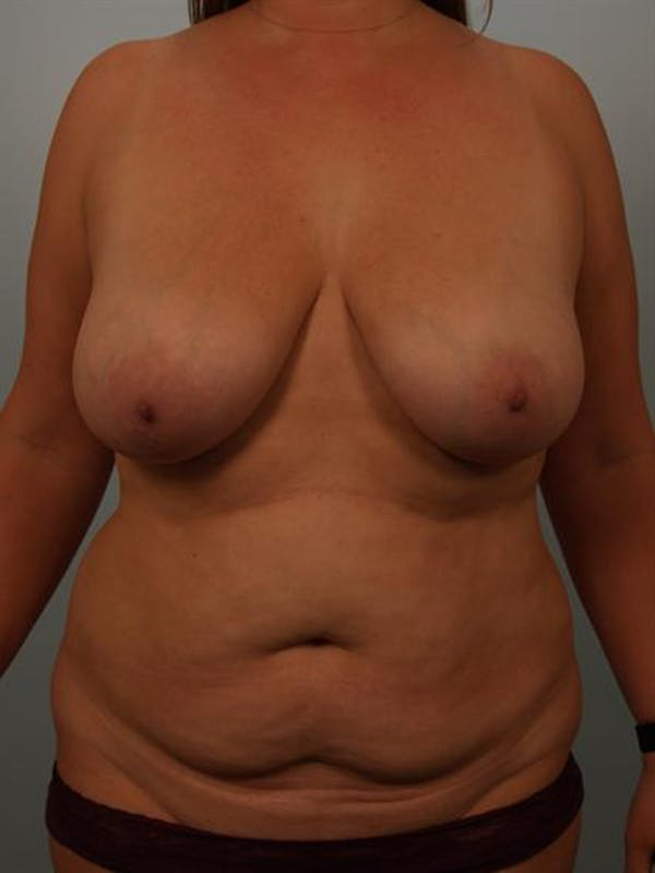 Breast Reduction Gallery - Patient 1310618 - Image 1