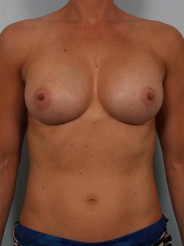 Complex Breast Revision Gallery - Patient 1310619 - Image 2