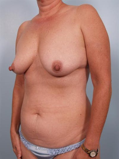 Breast Lift Gallery - Patient 1310616 - Image 1