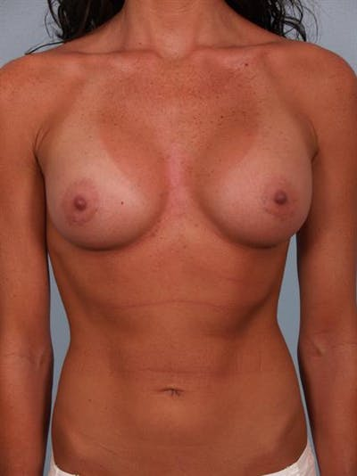 Breast Augmentation Gallery - Patient 1310617 - Image 6