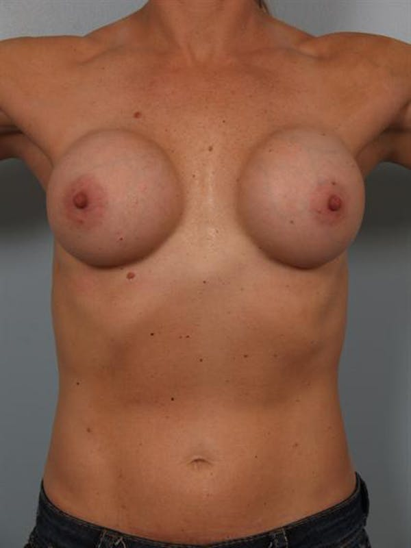Complex Breast Revision Gallery - Patient 1310619 - Image 3