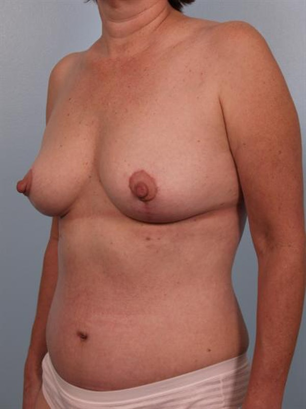 Breast Lift Gallery - Patient 1310616 - Image 2