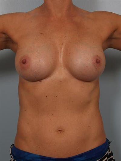 Complex Breast Revision Gallery - Patient 1310619 - Image 4