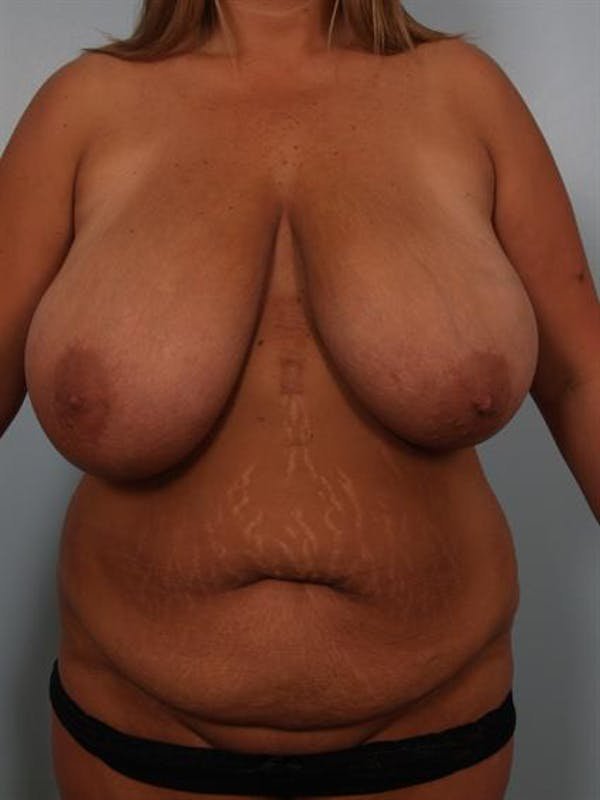 Mommy Makeover Gallery - Patient 1310621 - Image 1