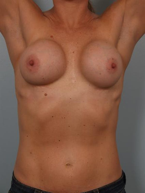 Complex Breast Revision Gallery - Patient 1310619 - Image 5