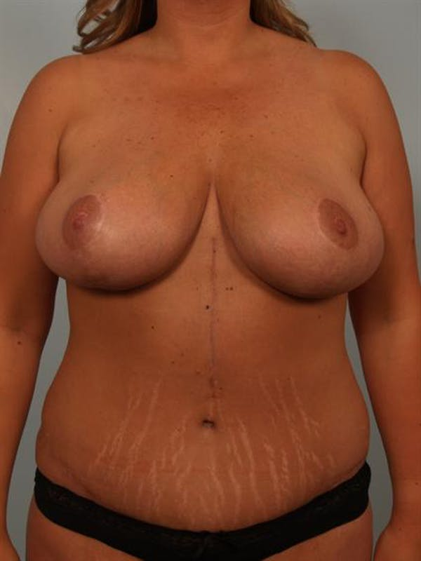 Mommy Makeover Gallery - Patient 1310621 - Image 2