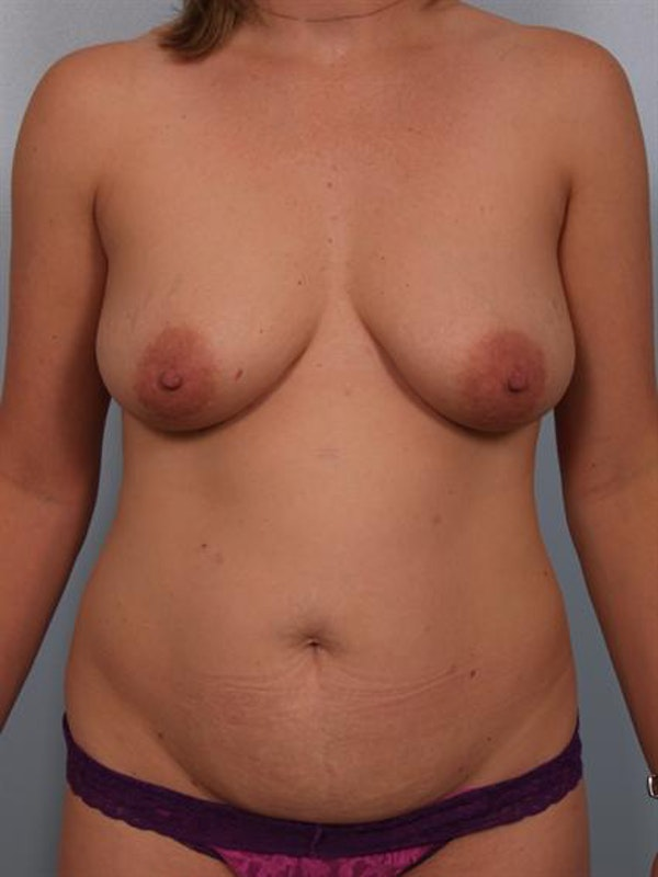 Breast Lift Gallery - Patient 1310624 - Image 1