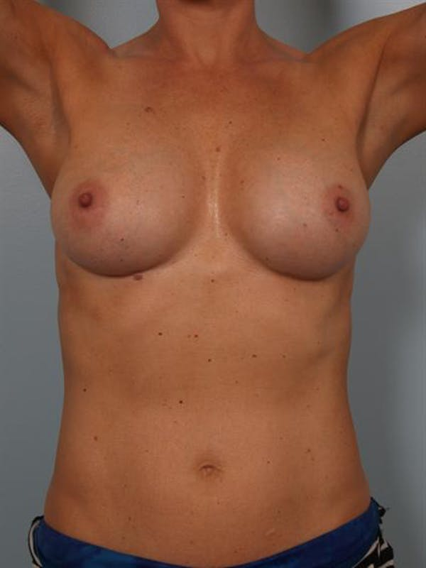 Complex Breast Revision Gallery - Patient 1310619 - Image 6