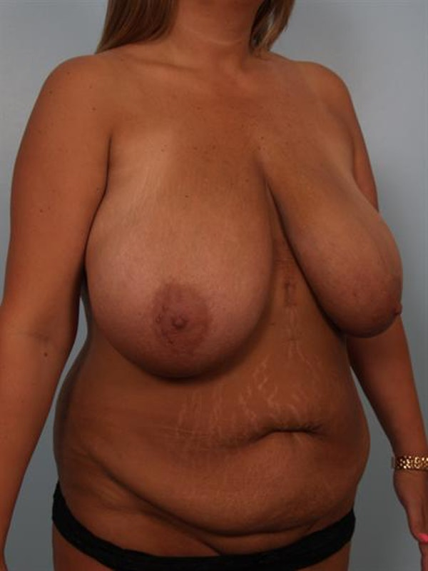 Mommy Makeover Gallery - Patient 1310621 - Image 3