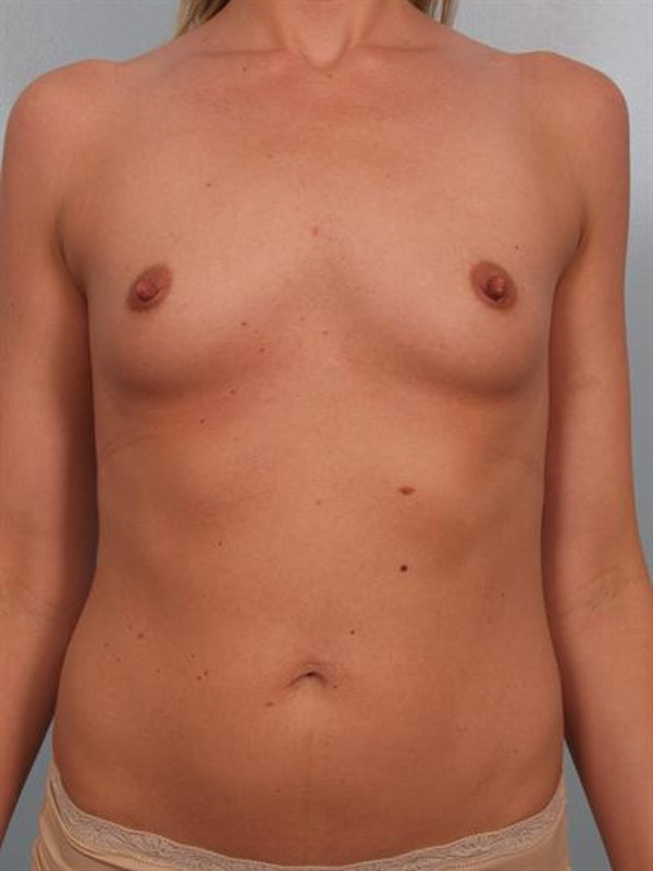 Breast Augmentation Gallery - Patient 1310626 - Image 1