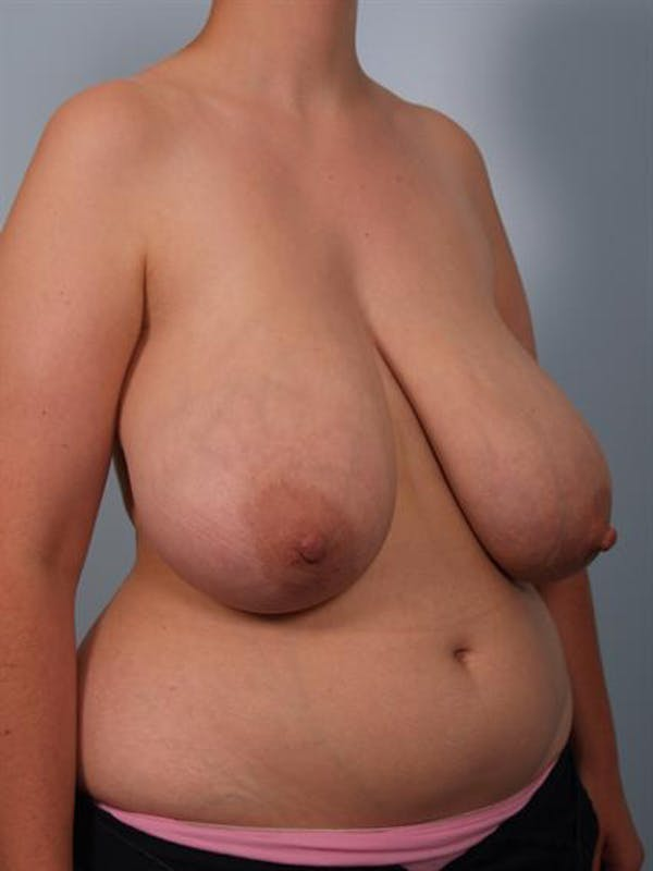 Breast Reduction Gallery - Patient 1310625 - Image 3