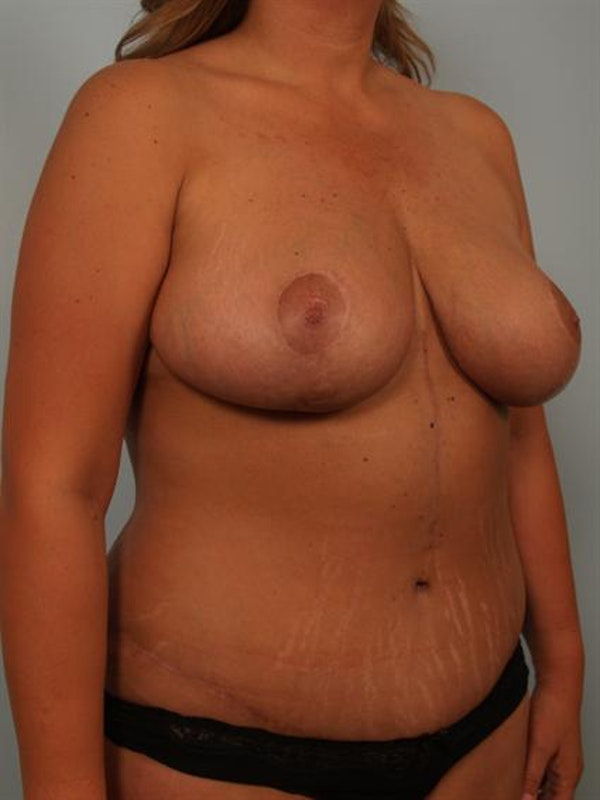 Mommy Makeover Gallery - Patient 1310621 - Image 4