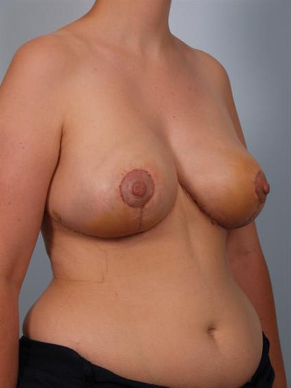 Breast Reduction Gallery - Patient 1310625 - Image 4