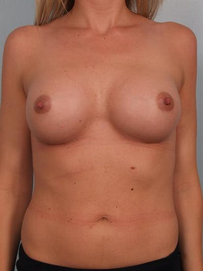 Breast Augmentation Gallery - Patient 1310626 - Image 2