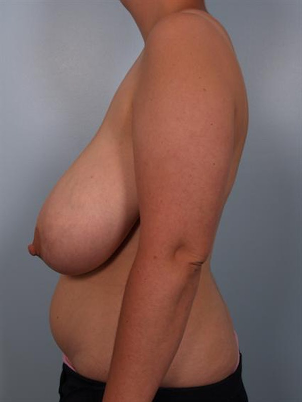 Breast Reduction Gallery - Patient 1310625 - Image 5
