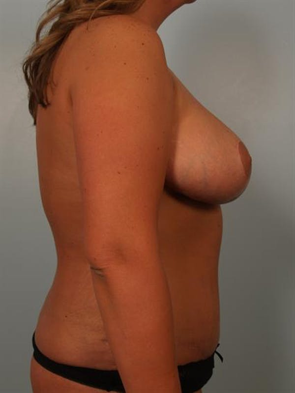 Mommy Makeover Gallery - Patient 1310621 - Image 6