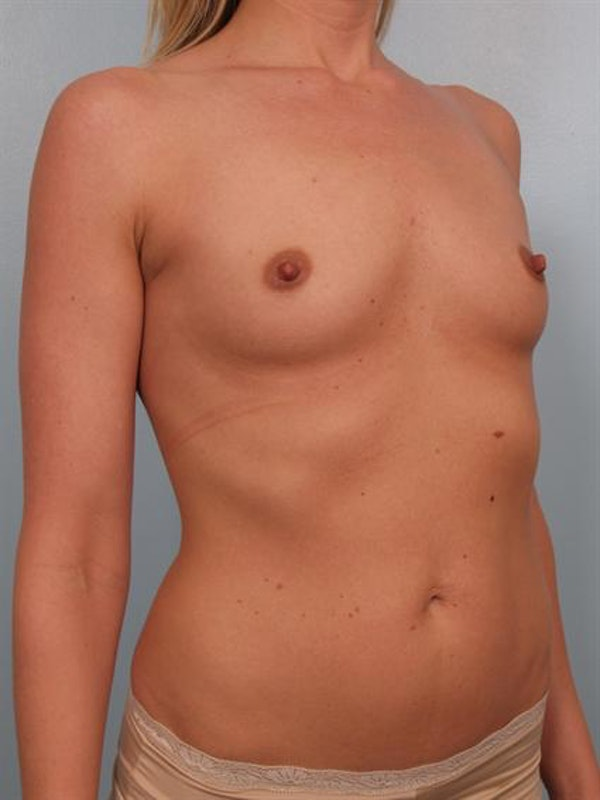 Breast Augmentation Gallery - Patient 1310626 - Image 3