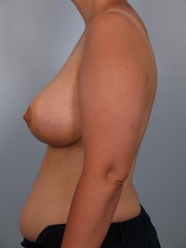 Breast Reduction Gallery - Patient 1310625 - Image 6