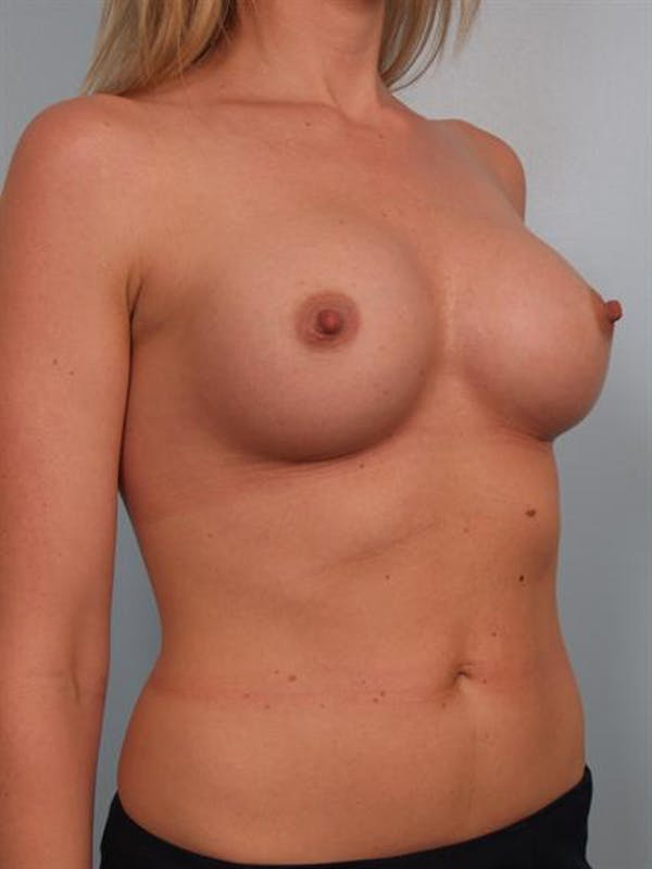 Breast Augmentation Gallery - Patient 1310626 - Image 4