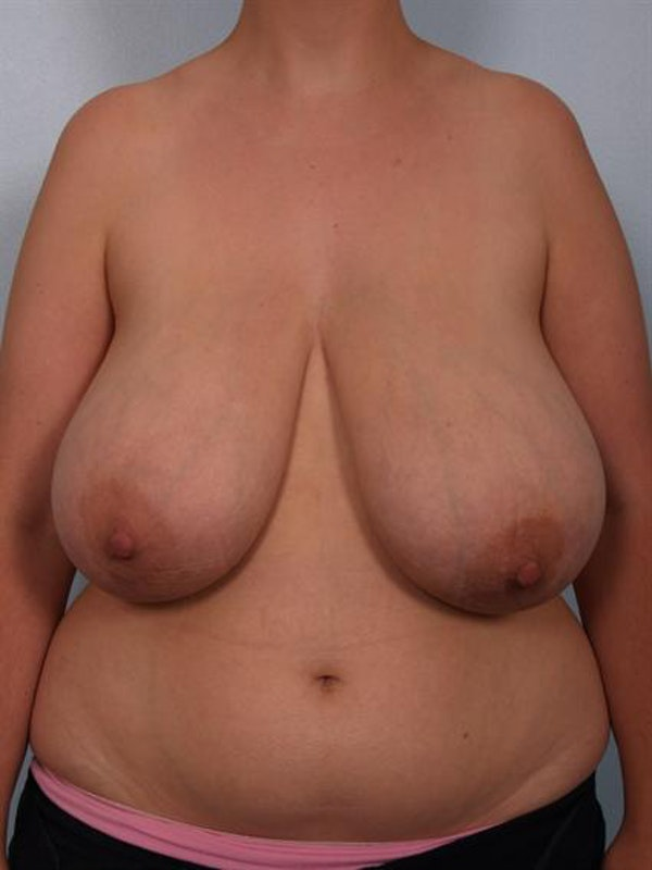 Breast Reduction Gallery - Patient 1310625 - Image 1