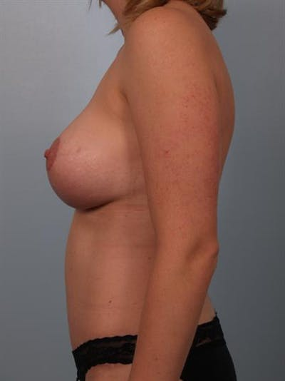 Breast Lift Gallery - Patient 1310624 - Image 6