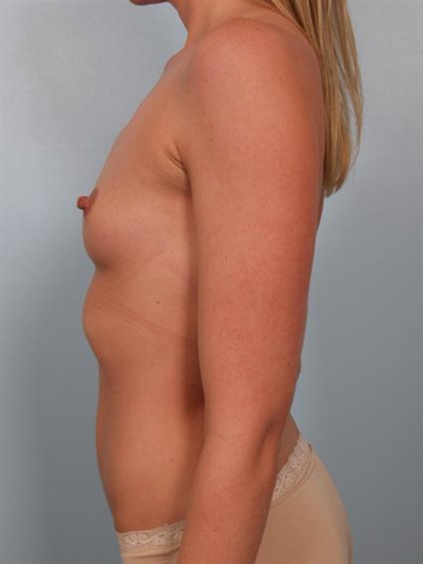 Breast Augmentation Gallery - Patient 1310626 - Image 5