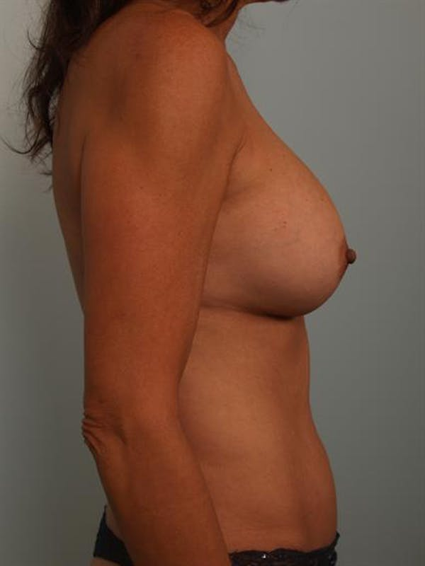 Complex Breast Revision Gallery - Patient 1310628 - Image 4